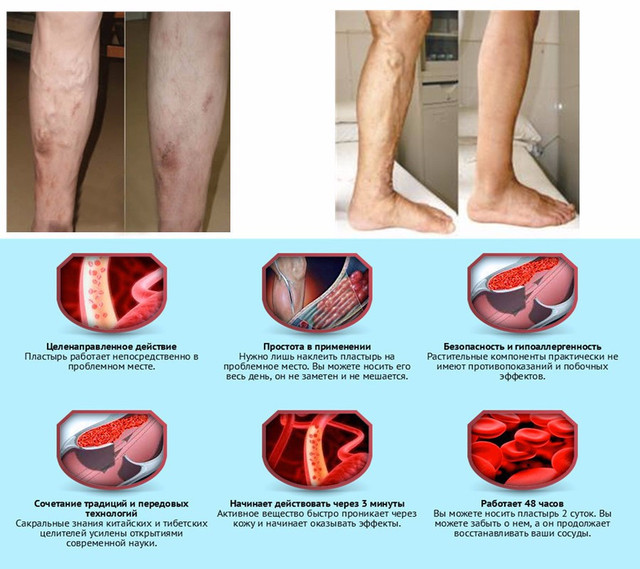 лікування варикозу