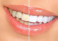 Отбеливание зубов (2у кратное)