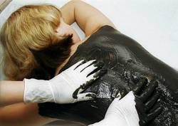 Грязелечение при женских воспалительных заболеваниях