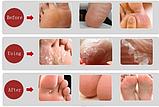 Носки для педикюра, пилинг для ног, фото 5