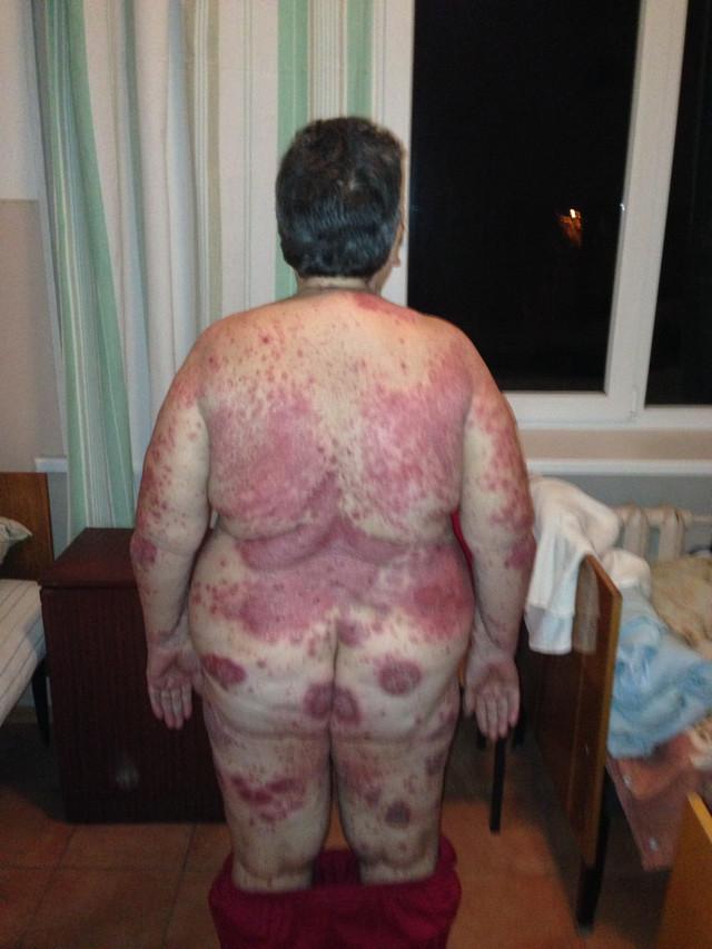 kak-vilechit-psoriaz-dermatoz-infektsiya