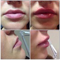Увеличение губ сертифицированными препаратами, врачом дерматологом