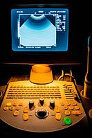 Ультразвуковой аппарат USG Siemens Sonoline Adara Ultrasound
