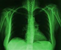 Рентгеновская пленка AGFA  Curix Ortho HT-G  Зеленочувствительная пленка