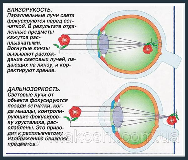 Инновационный способ — тренировки зрения по методу Дашевского