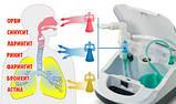 Інгалятор компресорний LD-210C для дорослих і дітей, універсальний, лікування верхніх і нижніх дих. шляхів, фото 5