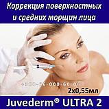 Allergan Juvederm ULTRA 2 - 2x0,55мл Коррекция поверхностных и средних морщин лица, фото 2