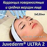 Allergan Juvederm ULTRA 2 - 2x0,55мл Коррекция поверхностных и средних морщин лица, фото 3