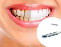 100 % ОРИГИНАЛ Карандаш для отбеливания зубов Teeth Whitening Pen