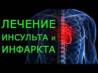 Лечение инсульта, инфаркт миокарда