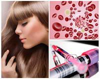 Плазмолифтинг кожи головы Лечение выпадения волос
