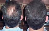Загуститель волос (пудра) Toppik 27,5 г + Закрепляющий спрей лак Toppik, фото 5
