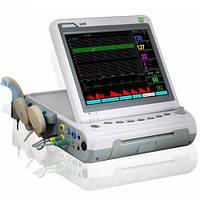Фетальный монитор G6B+ с контролем многоплодной беременности и матери, Heaco (Великобритания)