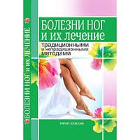 Хвороби ніг і їх лікування традиційними і нетрадиційними методами. Нестерова А. В.