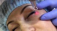 Лазерное удаление татуажа век