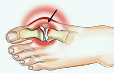 Новинка - пластырь для лечения косточки на ногах