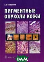 Червонная Лариса Владимировна Пигментные опухоли кожи