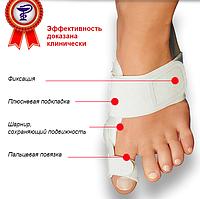 Профессиональное лечение косточки на ноге c Валюфикс