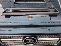 Карбоновая накладка на передний бампер (домик) Mercedes Benz G63 AMG