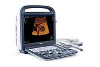 Портативный ультразвуковой сканер SonoScape S2 (2 датчика в комплекте)