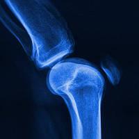 Рентгеновская пленка AGFA CPBU new CP-BU Синечувствительная пленка