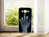 Чехол бампер силиконовый для Samsung J500H Galaxy J5 с принтом Рентген