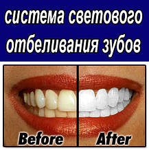Системи Відбілювання Зубів - White Smile