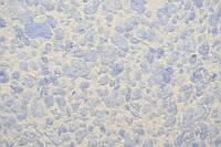 Шелковая штукатурка (жидкие обои) Silk Plaster Рельеф 326
