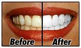 Уникальные отбеливающие полоски зубов Teeth Whitening мята это работает, фото 2