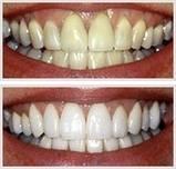 Уникальные отбеливающие полоски зубов Teeth Whitening мята это работает, фото 5