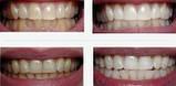 Уникальные отбеливающие полоски зубов Teeth Whitening мята это работает, фото 6