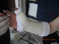 Устройство для лечения переломов HM CAST 4 X 55cm