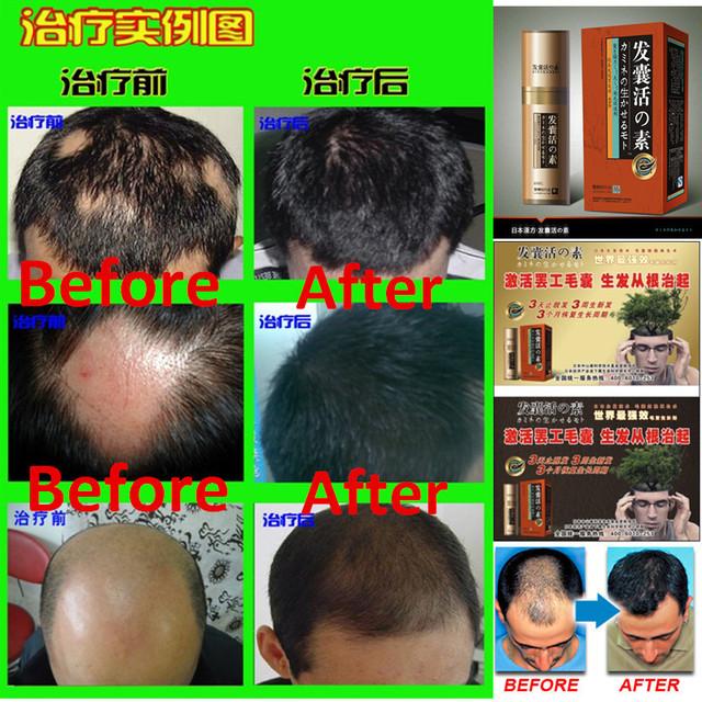 Трав'яна есенція для росту волосся
