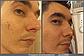Браш для нормальной  кожи с вибрацией Zeitgard, фото 9