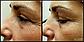 Браш для нормальной  кожи с вибрацией Zeitgard, фото 10