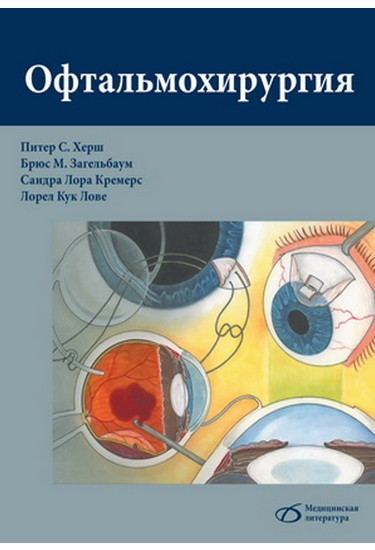Офтальмохирургия