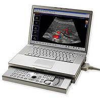 Портативный ультразвуковой сканер Aloka Prosound C3 (Портативный УЗИ аппарат)