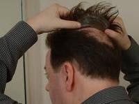 Мужская накладка из натуральных русских волос. Прямые
