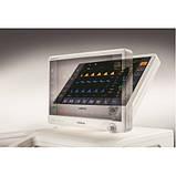 Аппарат для искусственной вентиляции легких SynoVent E5, фото 3