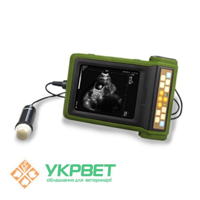 Портативний ультразвуковий прилад MSU