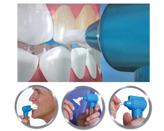 отбеливание зубов luma smile отзывы