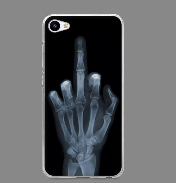 Силиконовый чехол бампер для Meizu U10 с картинкой Рентген