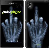 """Чехол на Sony Xperia C4 Рука через рентген """"1007u-295"""""""