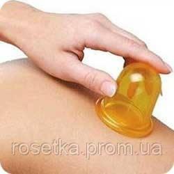 Баночный антицеллюлитный массаж