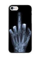 Оригинальный чехол бампер для Iphone 7 Plus с картинкой Рентген