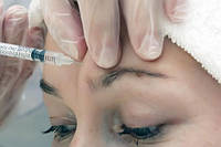 Ботулинотерапия межбровных морщин