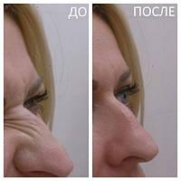 Ботулинотерапия морщин на спинке и крыльях носа