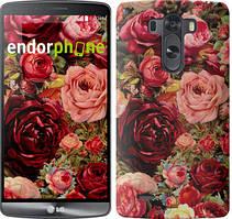 """Чехол на LG V10 H962 Цветущие розы """"2701u-370"""""""
