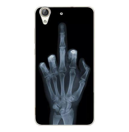Силиконовый бампер чехол для Huawei Y6ii Y6 II с рисунком Рентген