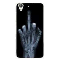 Силиконовый бампер чехол для Huawei Y6ii Y6 II с рисунком Рентген, фото 1